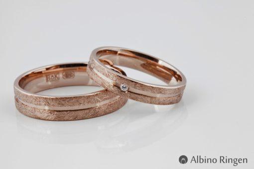 Albino Anna